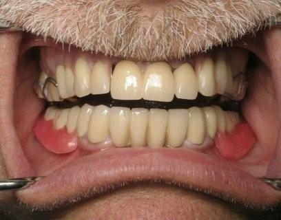 Nuance Dental Studio Full Mouth Reconstruction