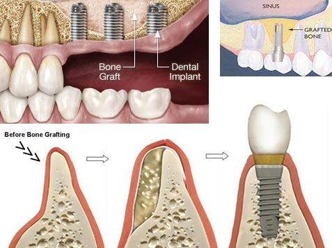 Nuance Dental Studio Bone Grafting