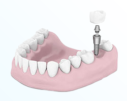 Nuance Dental Studio Dental Implants