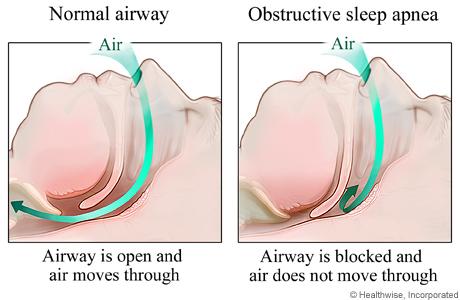 Nuance Dental Studio Sleep Apnea