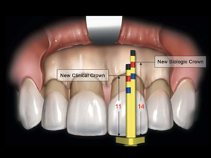 Nuance Dental Studio Crown Lengthening