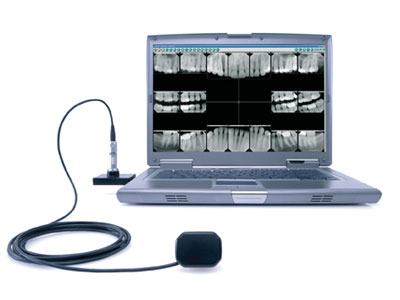 Nuance Dental Studio Digital X-Ray