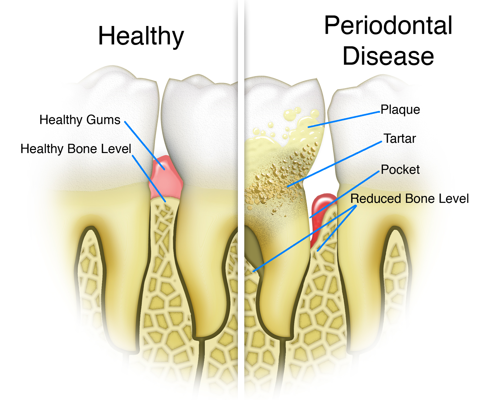 Nuance Dental Studio Periodontal Gum Disease