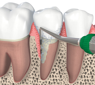 Nuance Dental Studio Periodontic