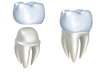 Nuance Dental Studio Crowns
